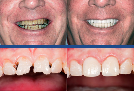 Before & after photos of cosmetic and reconstructive dentistry.