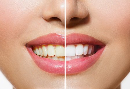 Patient with before & after whitening treatment on teeth.